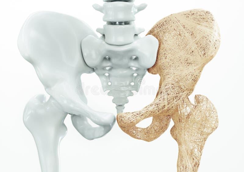 Osteoporosis - upper limb bones - 3d rendering. Osteoporosis upper limb bones - human body stock illustration