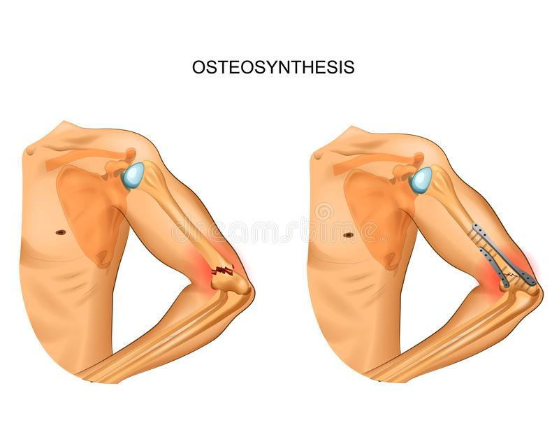 Osteosynthesis in fracture of distal humerus vector illustration