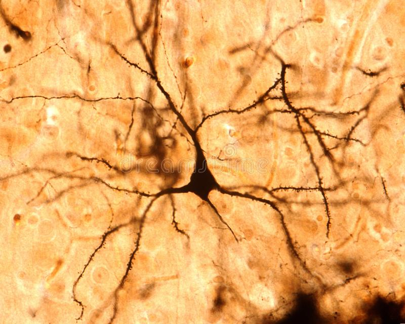 Ostrosłupowa komórka Cerebralny cortex zdjęcie royalty free