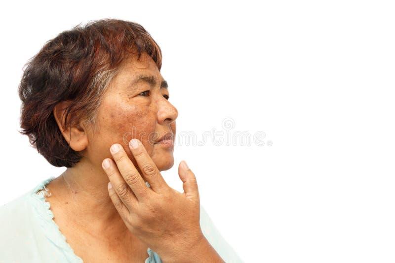 Oude landelijke vrouw met smet, acne, mol en rimpel op haar gezicht stock foto