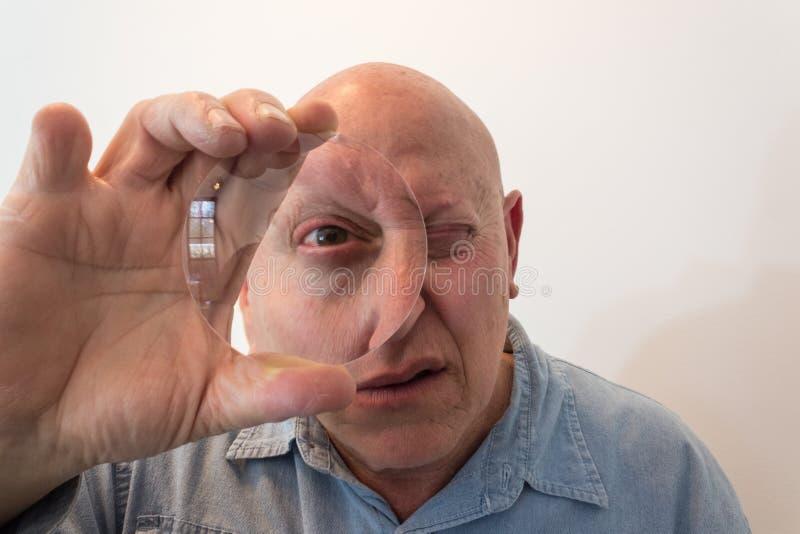 Oudere mens die door een grote lens, vervorming kijken, kaal, alopecia, chemotherapie, kanker, op wit royalty-vrije stock foto's