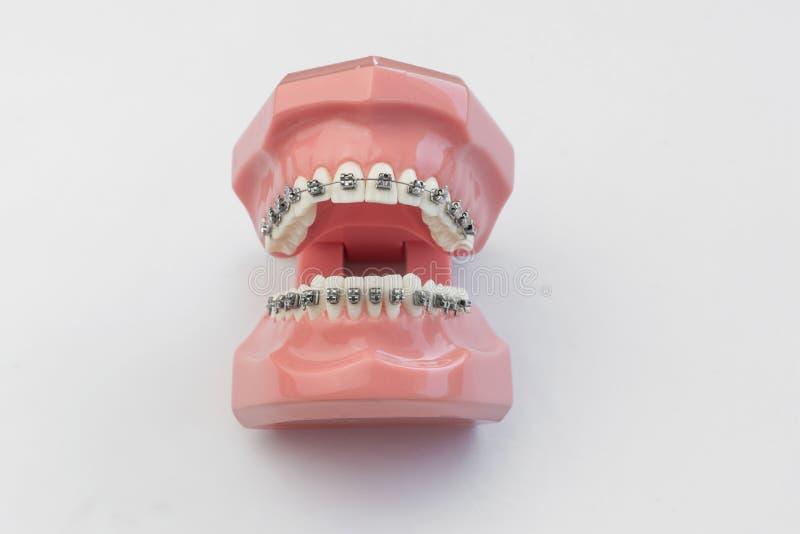 Ouvrez la mâchoire humaine artificielle avec les dents et les accolades parfaites photos stock