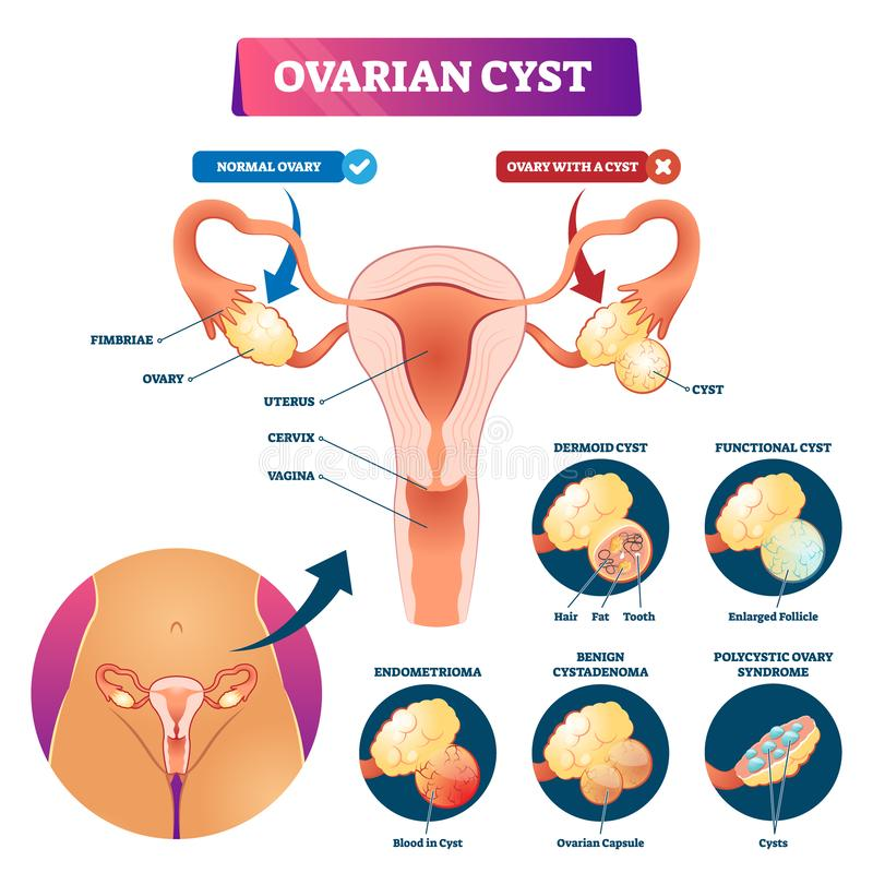 Ovarian cyst vector illustration. Labeled medical condition types scheme. Anatomical infographic with normal and sick gynecological disease comparison. Woman vector illustration