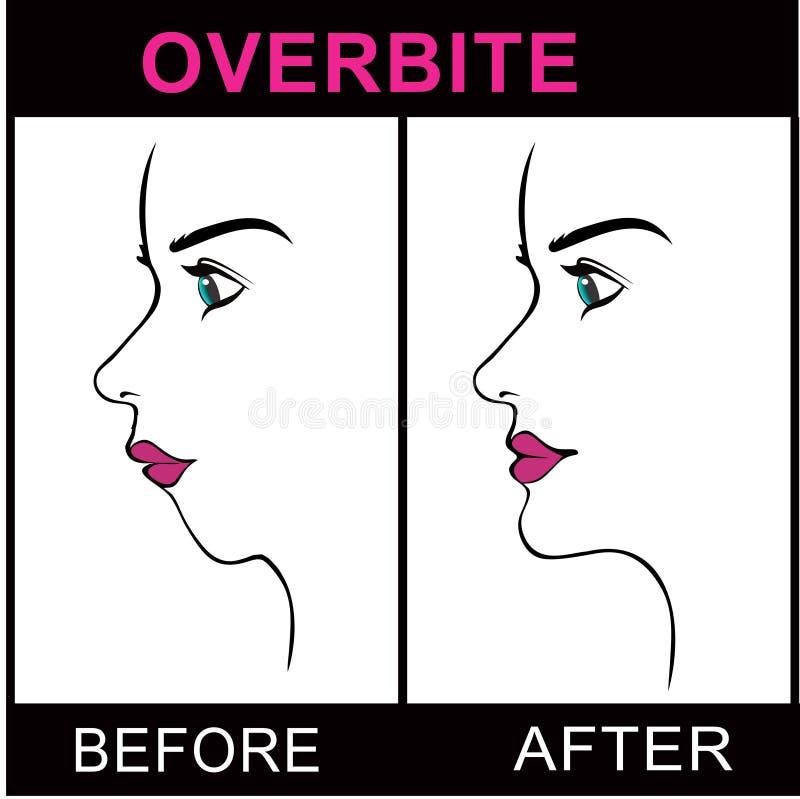 Overbite. Maxillofacial surgery jaw overbite procedure royalty free illustration