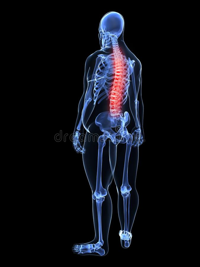 Download Overweight Man - Painful Spine Stock Images - Image: 18583584