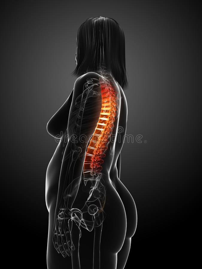 Download Overweight Woman - Backache Stock Illustration - Image: 18583604