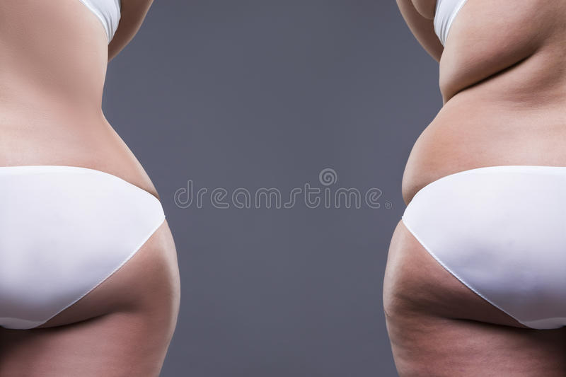 Overweight woman with fat legs and buttocks, before after concept, obesity female body, rear view royalty free stock photos