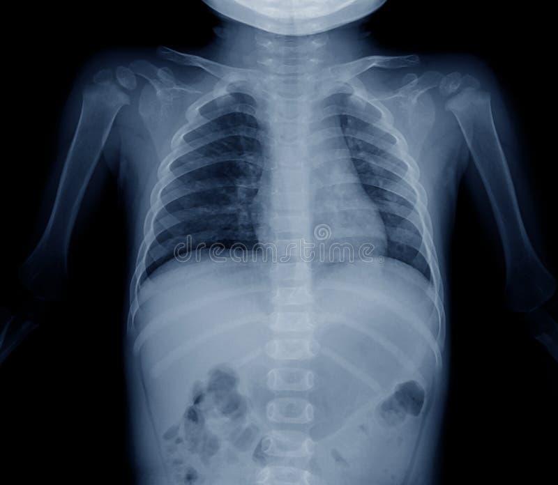Pädiatrische Brustradiographie lizenzfreie stockbilder