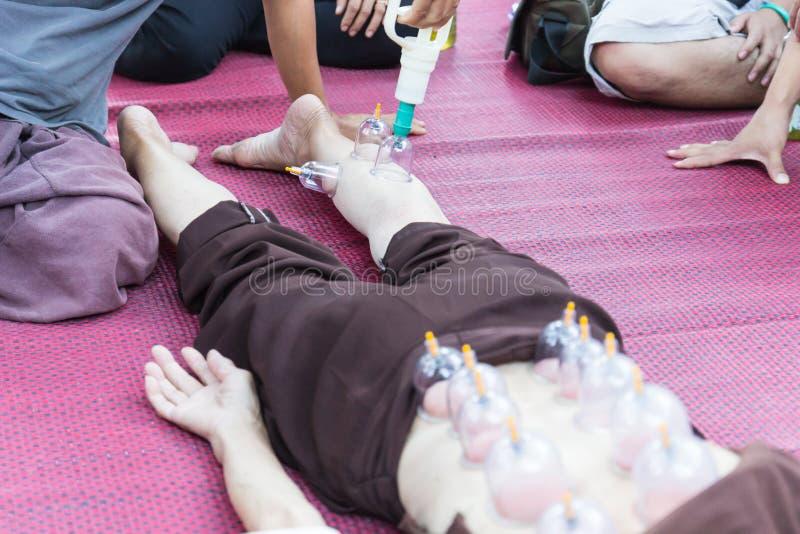 Pé e vácuo traseiro da pele, a medicina alternativa chinesa foto de stock