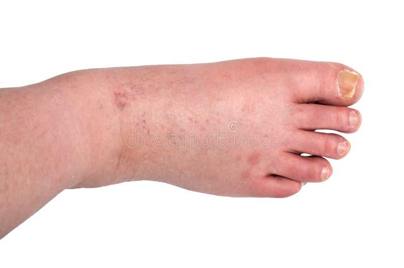 Reflexologia, massagem nos pés — Stock Photo