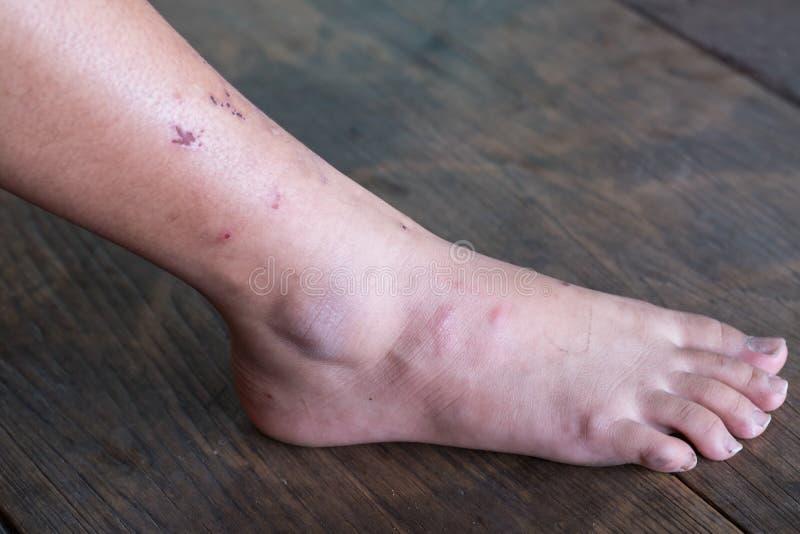 Pé sem fôlego, síndrome do pé do diabético fotos de stock