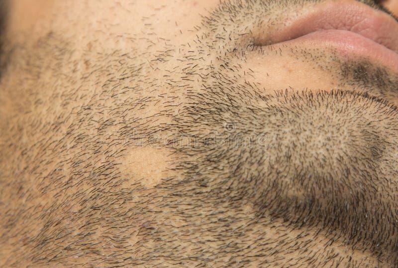 Pérdida de pelo de Areata de la alopecia en barba de la mejilla en un remiendo fotografía de archivo