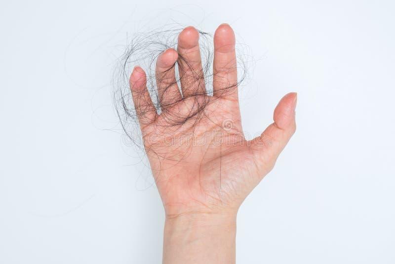 Pérdida de pelo en mano de la mujer fotografía de archivo libre de regalías
