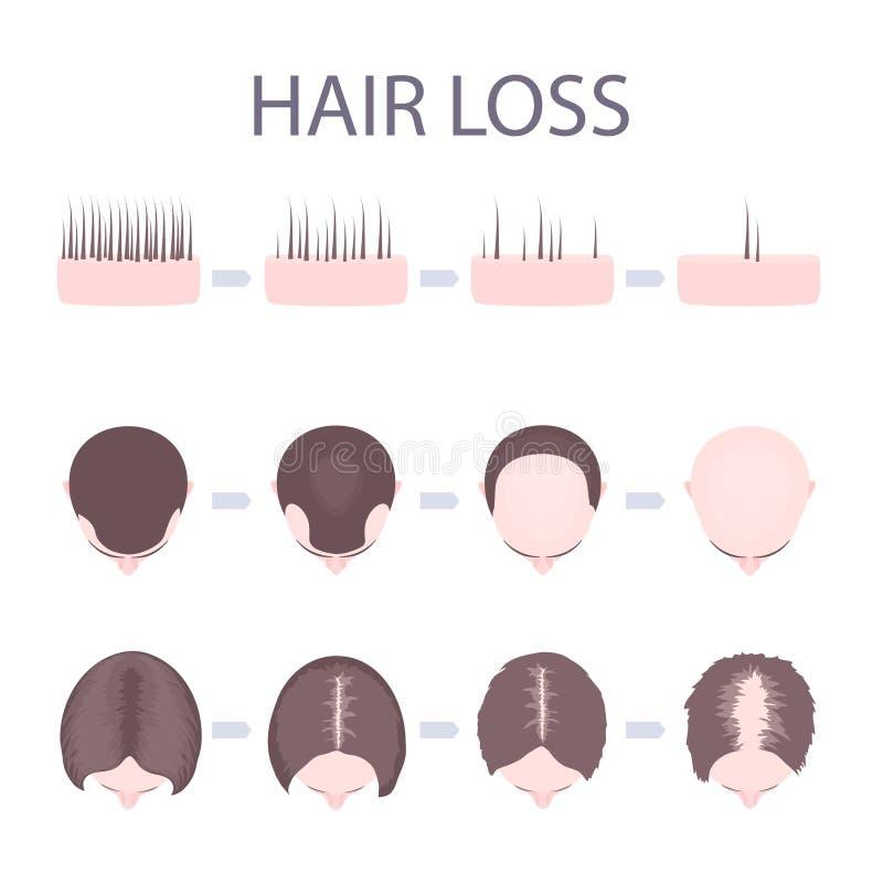 Pérdida de pelo masculina y femenina stock de ilustración