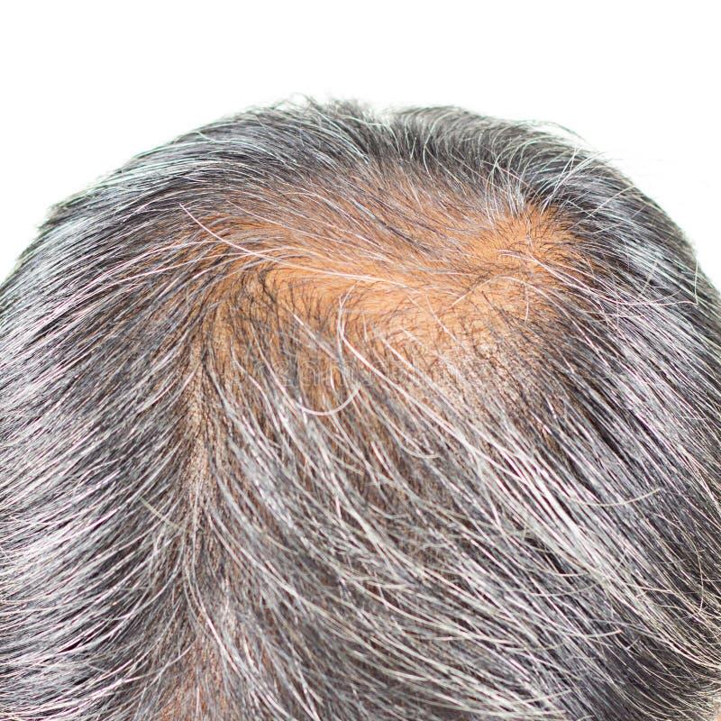 Pérdida de pelo y pelo gris fotografía de archivo libre de regalías