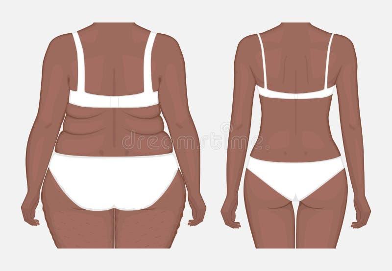 Pérdida de peso problem_Body del cuerpo humano de las mujeres afroamericanas franco libre illustration