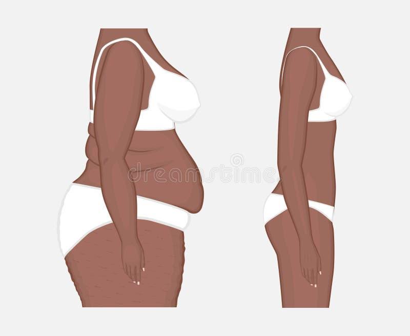 Pérdida de peso problem_Body del cuerpo humano de las mujeres afroamericanas franco ilustración del vector