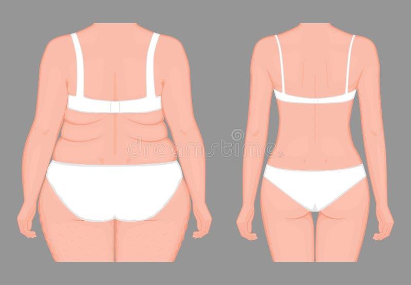 Pérdida de peso problem_Body del cuerpo humano de mujeres europeas del obesi stock de ilustración