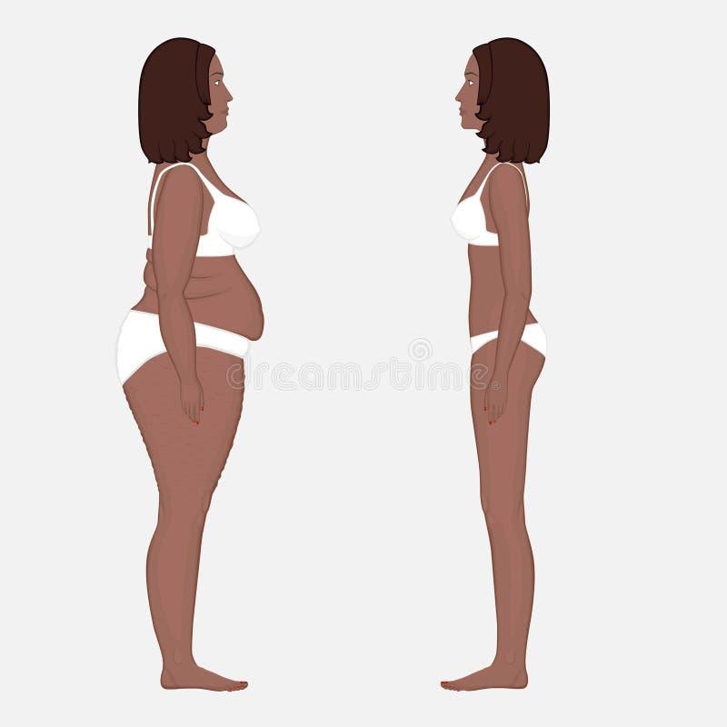 Pérdida Del Anatomy_Weight Del Cuerpo Humano En Un Lado ...