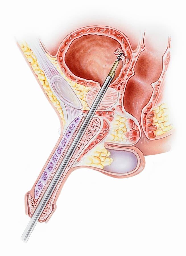 Pênis - com Resectoscope ilustração stock