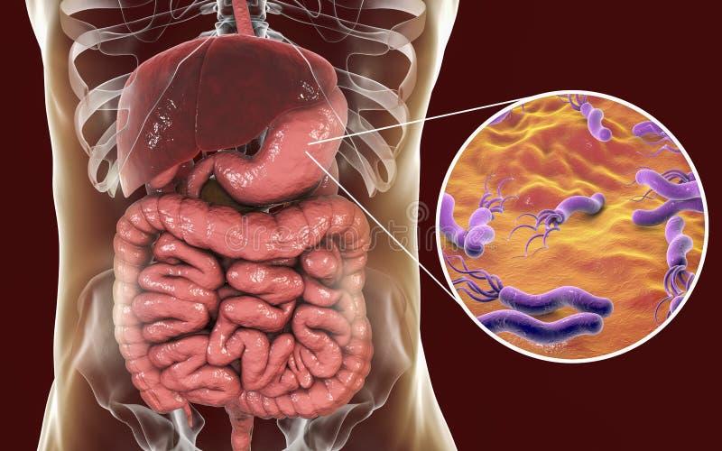Píloros de Helicobacter, estómago de colonización de la bacteria ilustración del vector