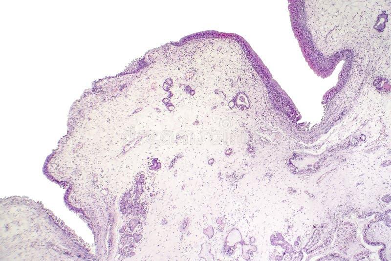 Pólipo inflamatorio, micrográfo ligero imagenes de archivo