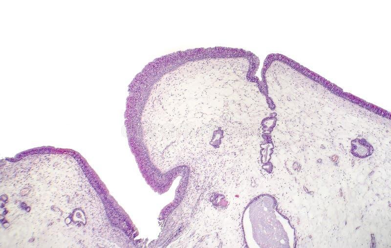 Pólipo inflamatorio, micrográfo ligero fotografía de archivo