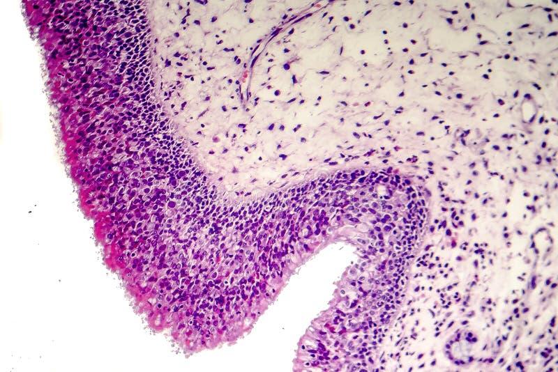 Pólipo inflamatorio, micrográfo ligero fotografía de archivo libre de regalías
