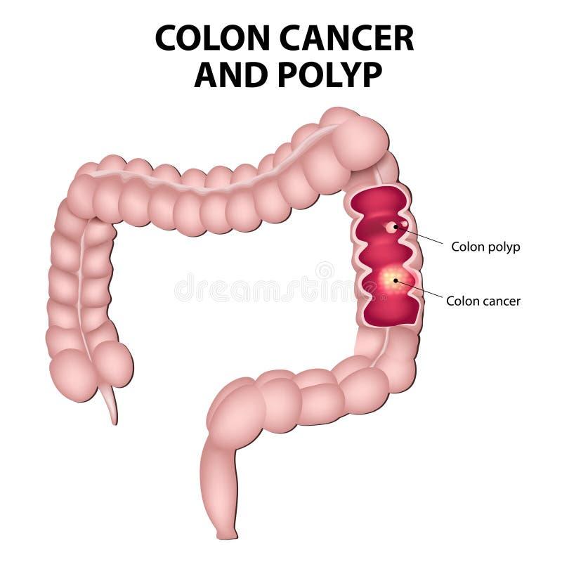Pólipos do câncer do cólon e dos dois pontos ilustração stock