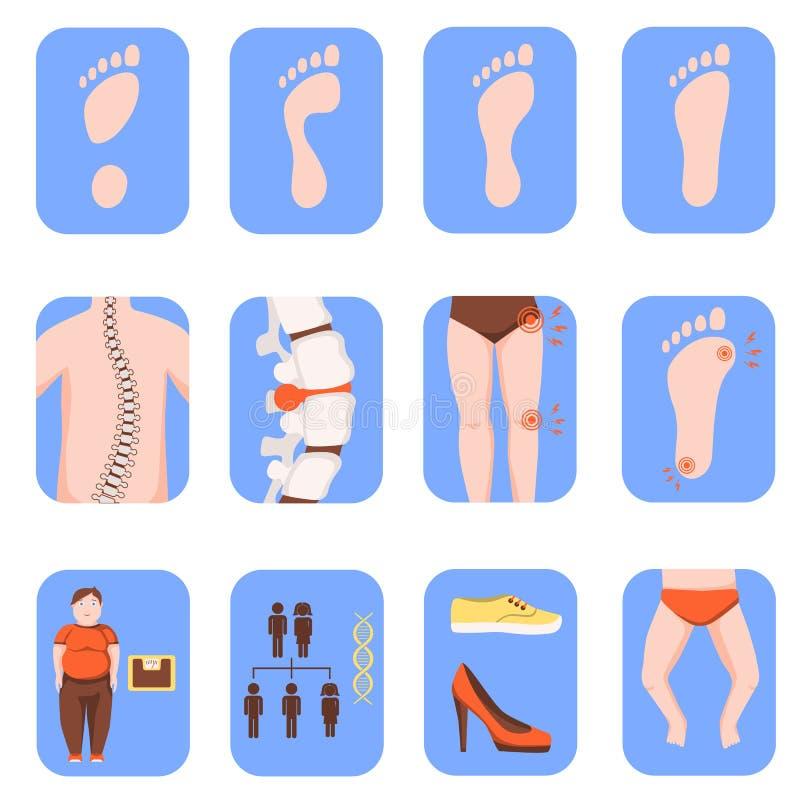 Płaskie nożne deformacj ikony ilustracyjne ilustracji