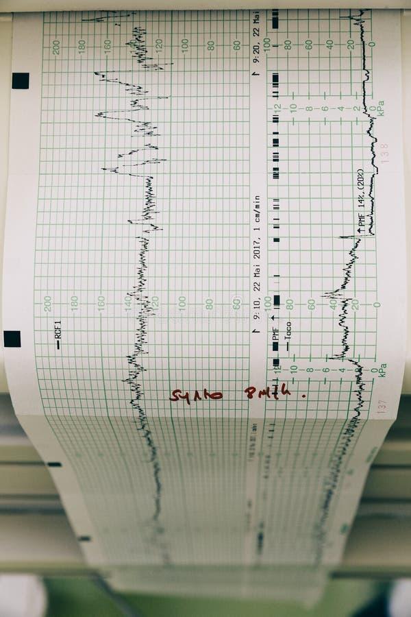 Płodowy monitorowanie obrazy stock