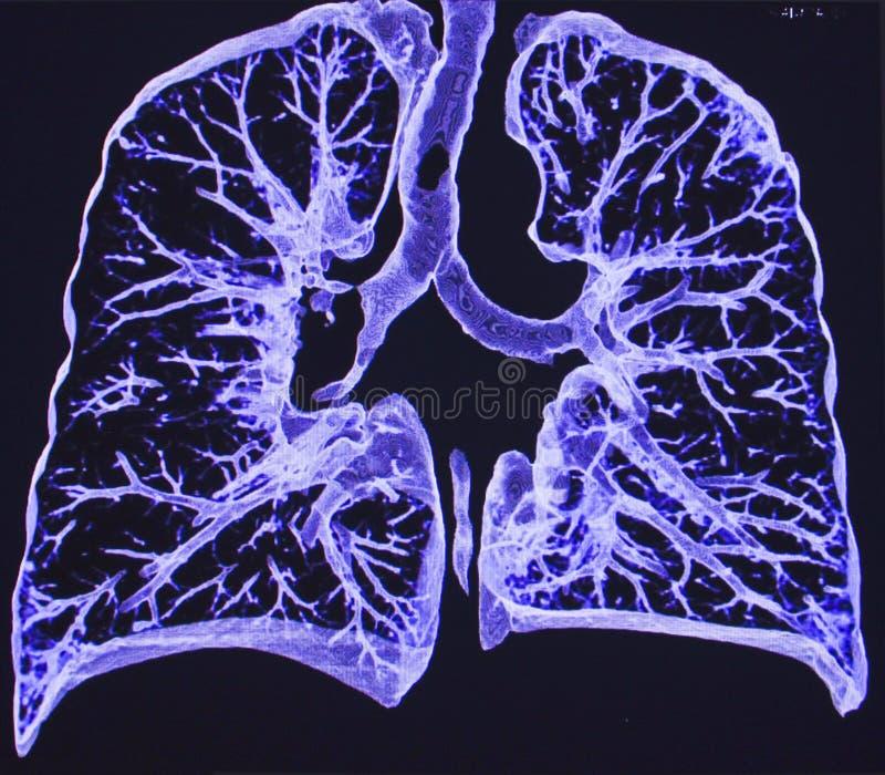 Płuca, CT zdjęcia royalty free