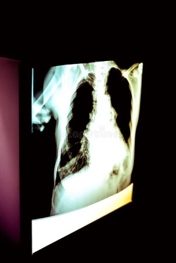 Płuca promieniowanie rentgenowskie obrazy royalty free