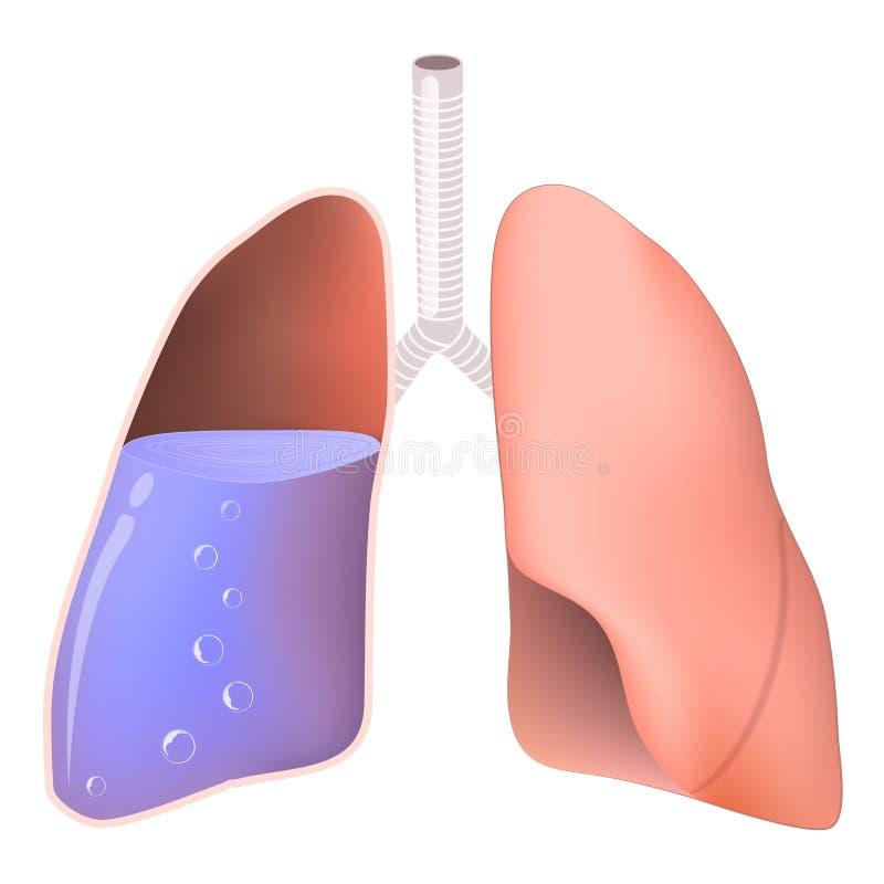 Płuca z wodą royalty ilustracja