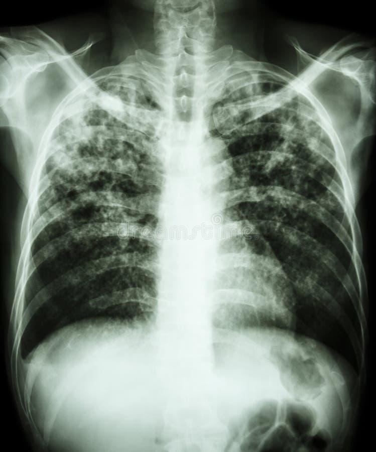 Płucna gruźlica zdjęcie royalty free