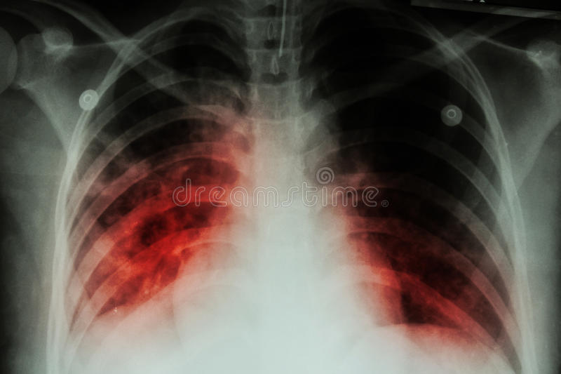 Płucna gruźlica (TB): Klatki piersiowej promieniowania rentgenowskiego przedstawienia przydziąsłowa infiltracja przy oba płuco na obrazy royalty free