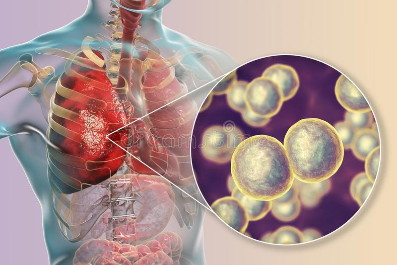 Płuco infekcja powodować bakterii Moraxella catarrhalis ilustracja wektor