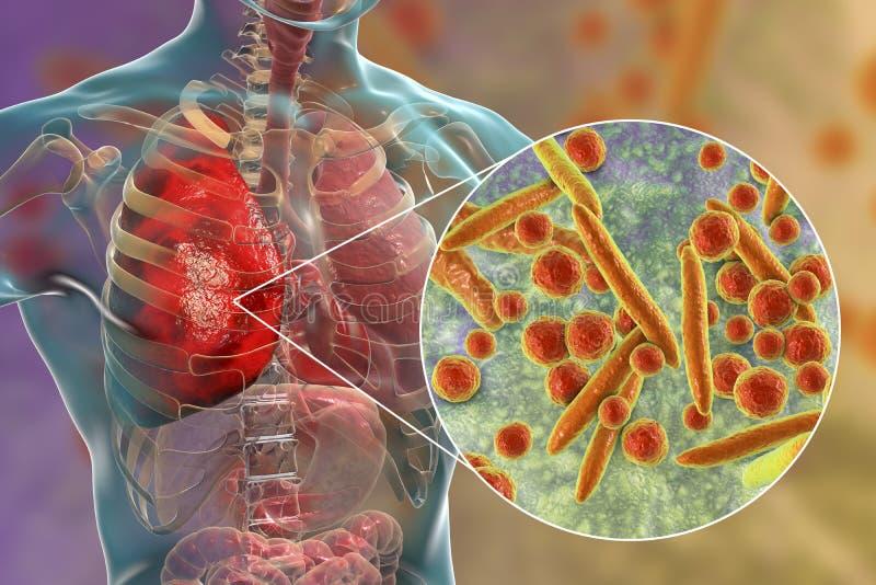 Płuco infekcja powodować bakterii Mycoplasma pneumoniae ilustracja wektor