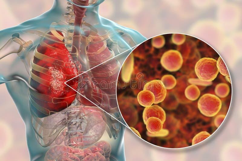 Płuco infekcja powodować bakterii Mycoplasma pneumoniae royalty ilustracja