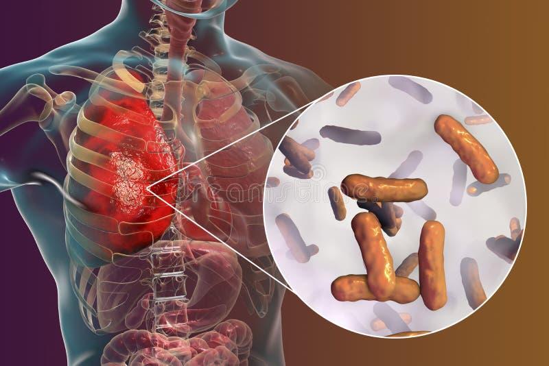 Płuco infekcja powodować bakterii Pseudomonas - aeruginosa royalty ilustracja