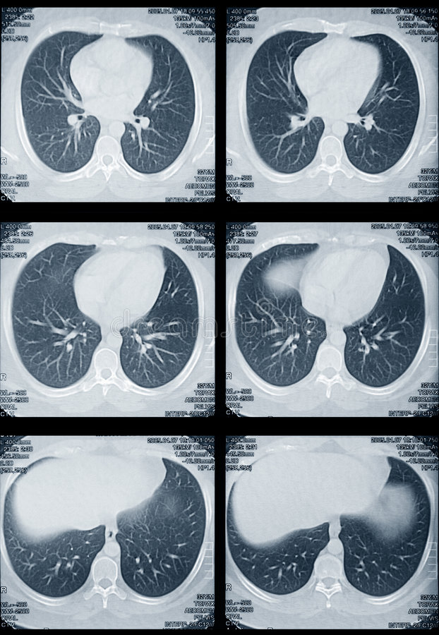 płuco tomografia serca fotografia stock