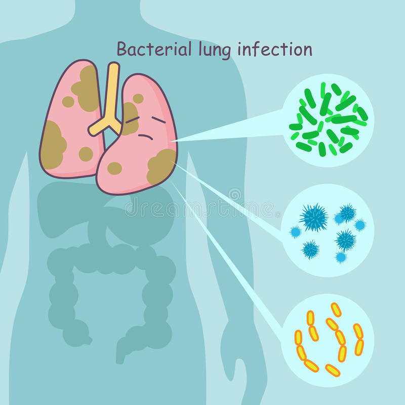 Płuco z bakteryjną płuco infekcją ilustracji