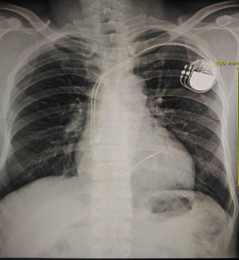pacemaker arkivbild