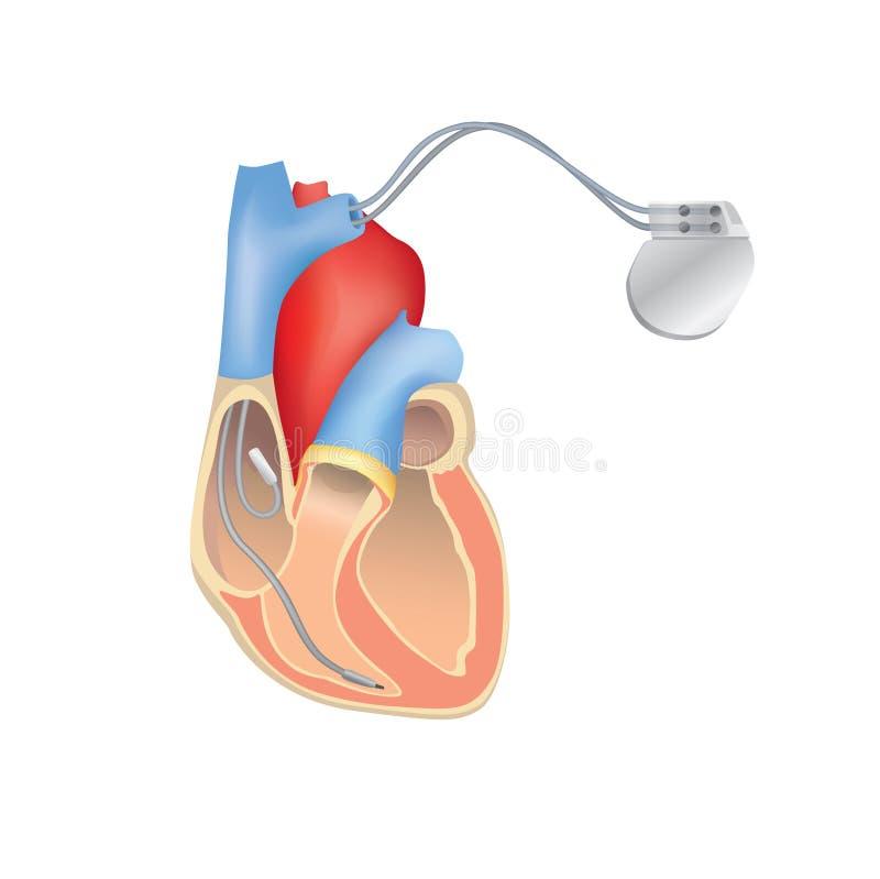 Pacemaker de coração no trabalho Anatomia humana do coração com ICD ilustração royalty free
