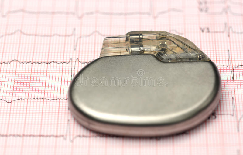 Pacemaker on electrocardiograph. Close up of Pacemaker on electrocardiograph stock images