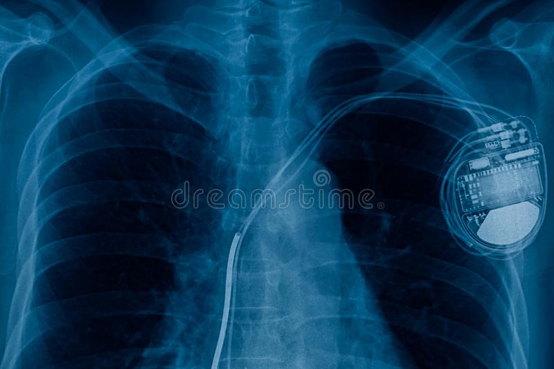 Pacemaker engine in heart. Pacemaker cell x-ray image stock image