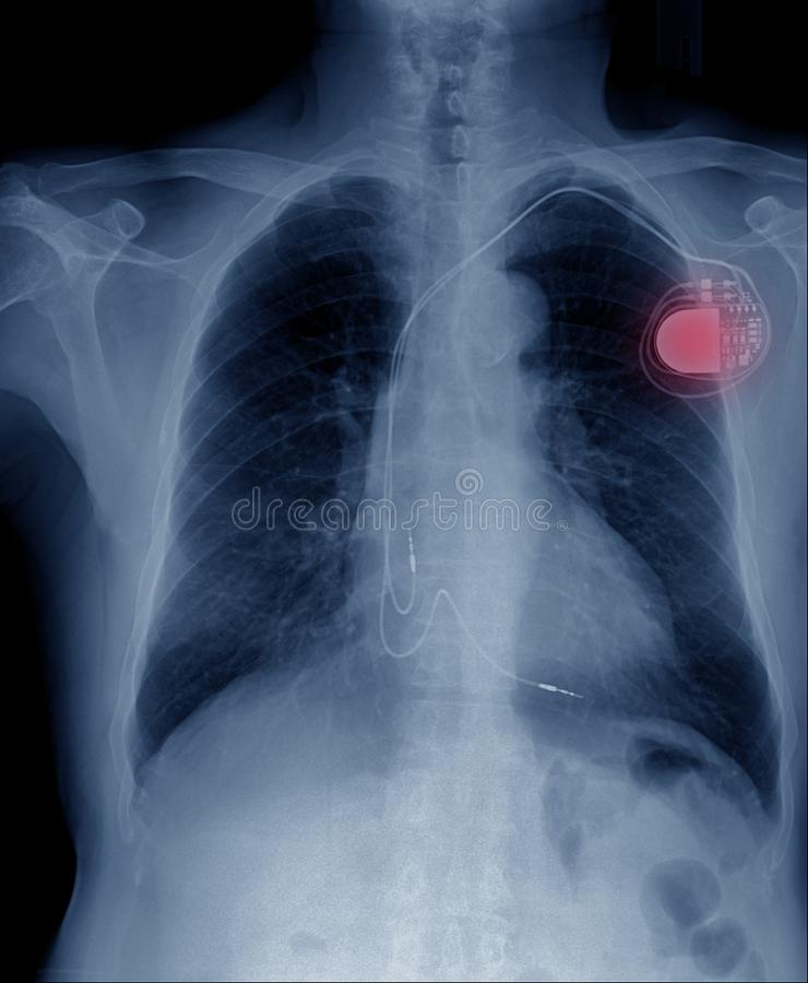 pacemaker komórka zdjęcia royalty free