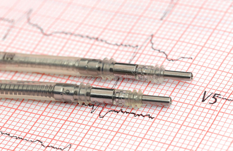 Pacemaker leads on electrocardiograph. Close up of Pacemaker leads on electrocardiograph royalty free stock image