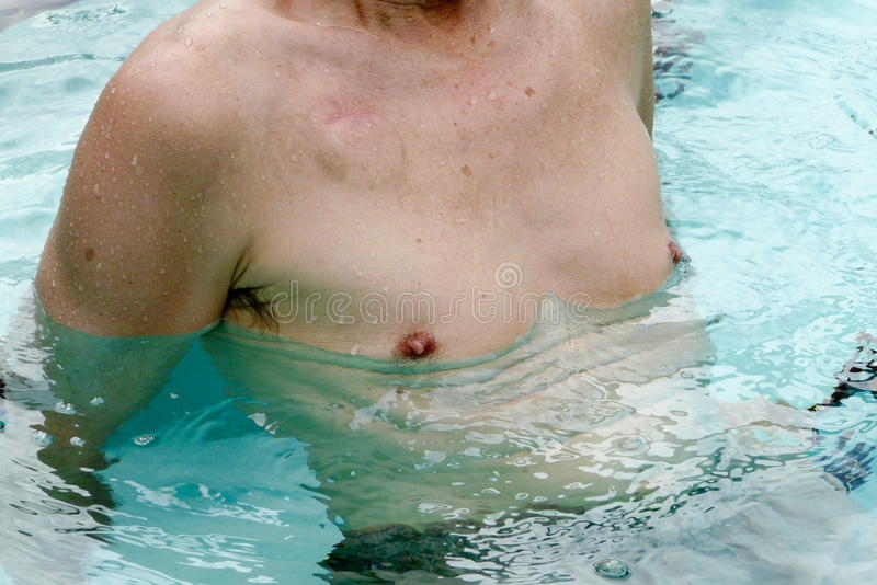 Pacemaker Patient Exercising. Senior male cardiac patient working out in a swimming pool several weeks after having a pacemaker implanted. The scar from the stock image