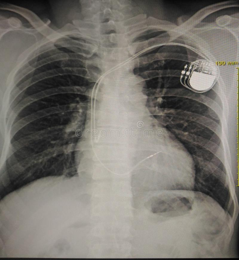 Pacemaker. X-ray chest showing pacemaker in body chest stock photography